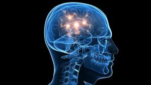 Epilepsia, Síndrome de Angelman, Apadrina un Ángel